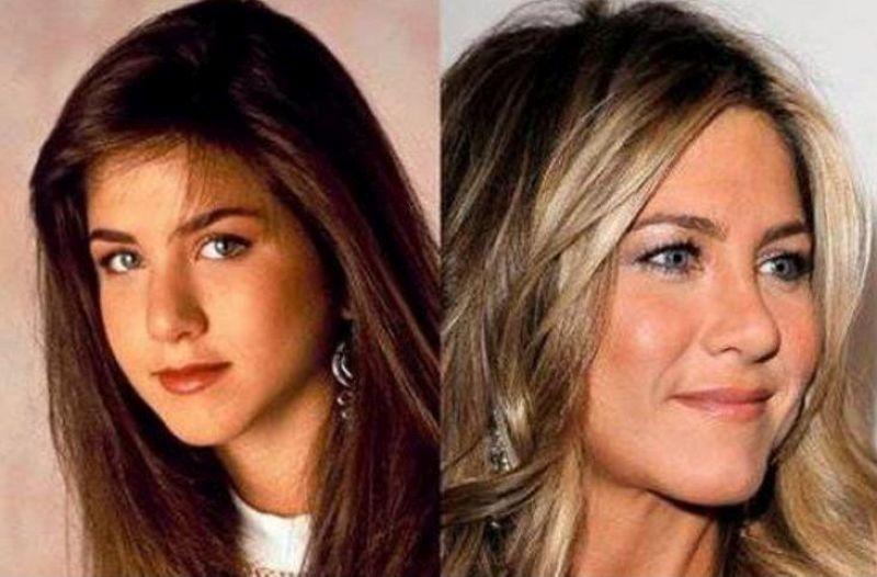 Nasi vip rifatti: le foto delle star prima e dopo l'operazione